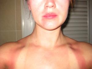 Min hud var något ovan vid solen och såklart missade jag ett par fläckar med solkrämen, med följande resultat.